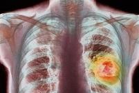 Дыхательный тест поможет диагностировать рак легкого